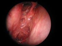 Healed sinus cavity